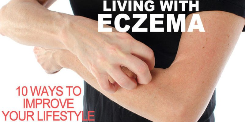 10 tips for Living with excema