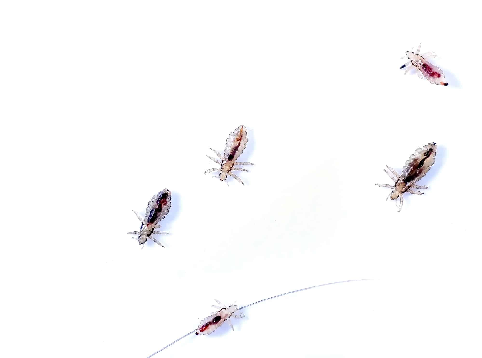 Head Lice *shudders*