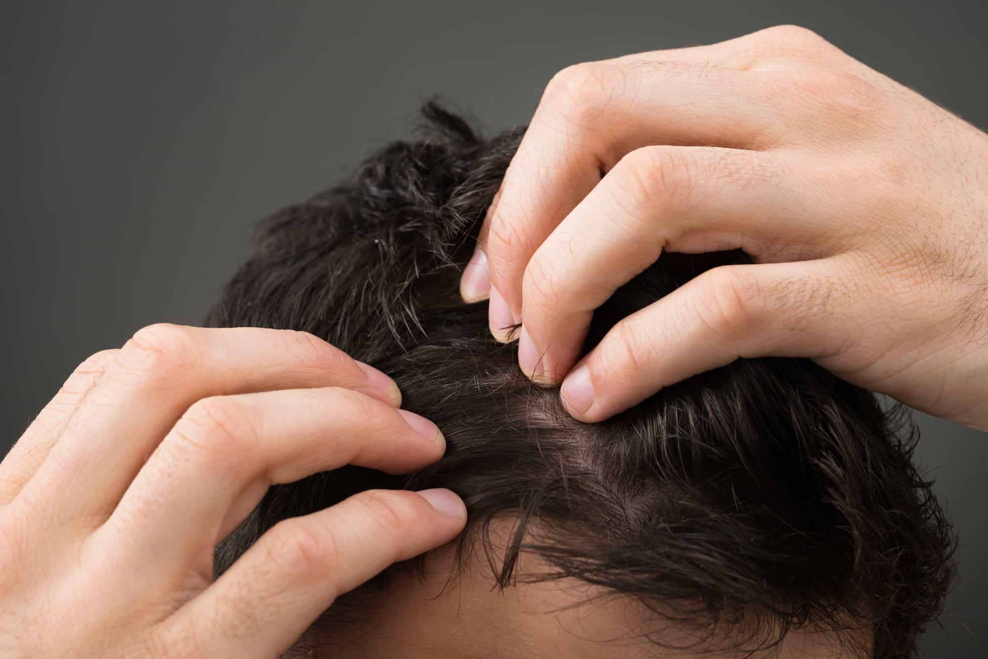 Head Lice *shudders* 2