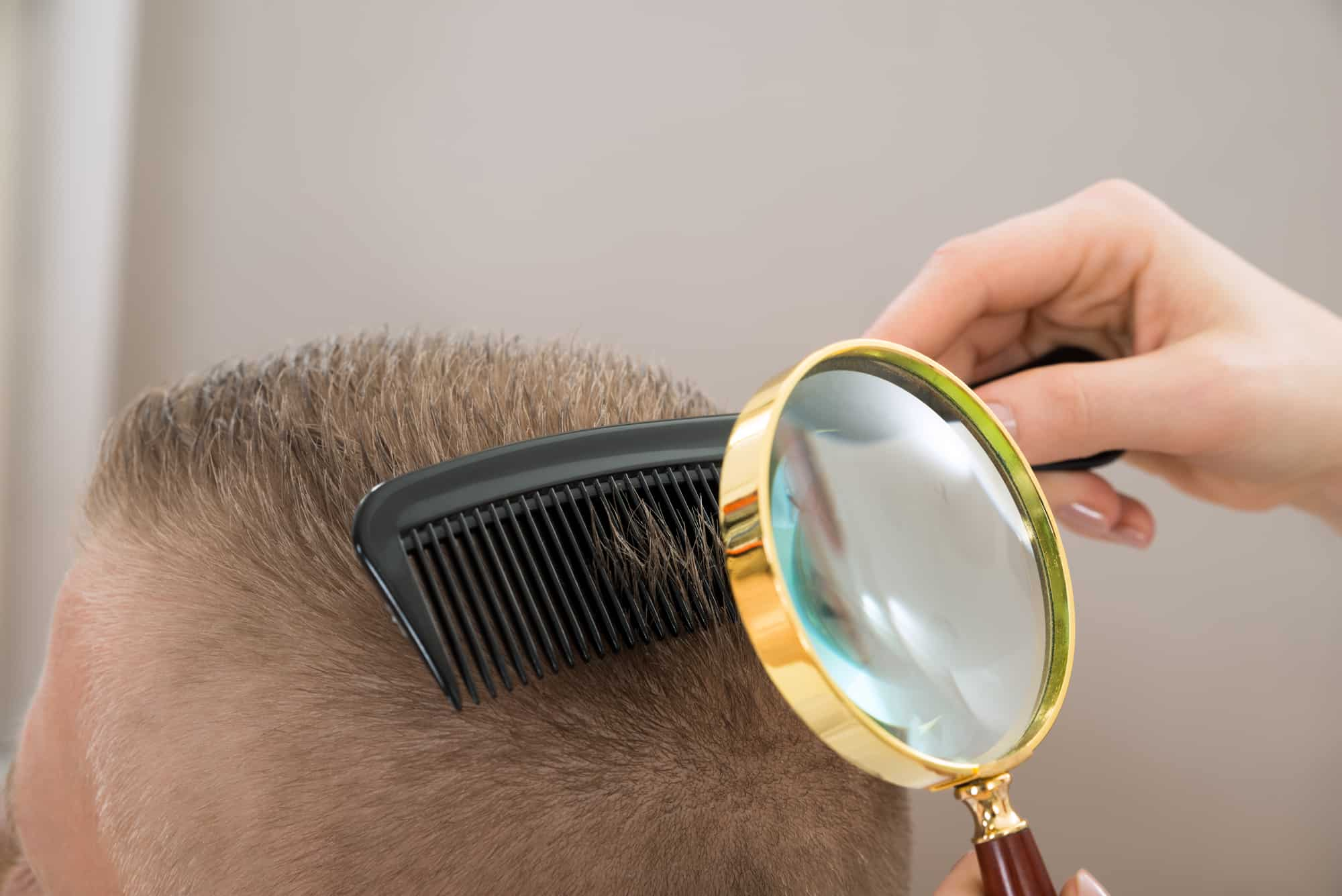 Close-up Dermatologist Looking At Patient's Hair Through Magnifying Glass