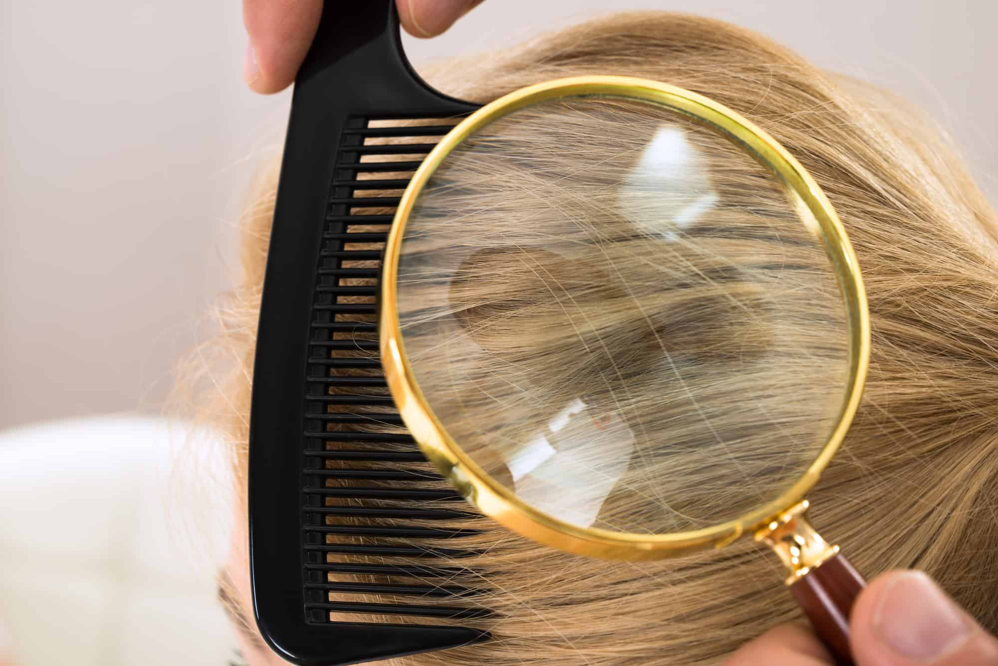 Close-up Dermatologist Looking At Patient's Blonde Hair Through Magnifying Glass