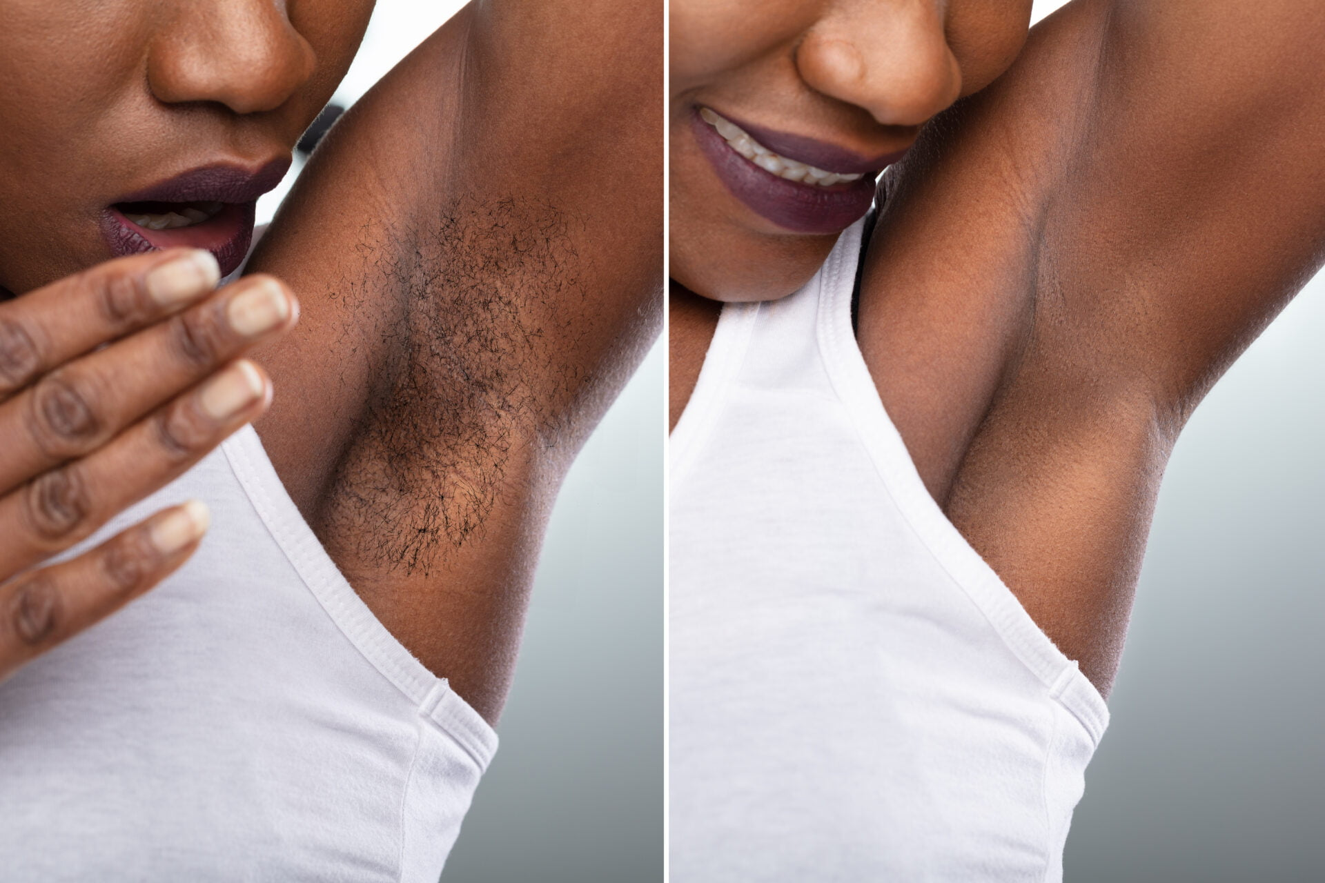 Before And After Concept Of Woman's Underarm Hair Removal